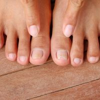 Don't Let Toenail Fungus Force Your Feet Into Hiding: Town Center Foot &  Ankle: Podiatry