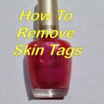 3 Ways To Remove Skin Tags - At Home With My Honey