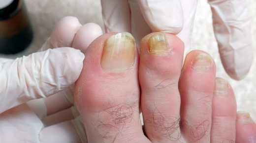 Why are my toenails yellow: Causes and treatment
