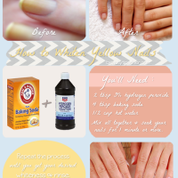 If you are a fan of using dark nail polish, I bet you have experienced a  discolored, stained nails. Check out this easy… | Stained nails, Yellow  nails, Beauty hacks