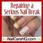 Broken Nail Repair – What To Do When It's Bad | Nail Care HQ