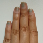 Stained Nails Survival Guide