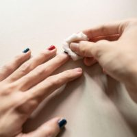 Acetone on Skin: Uses and Side Effects