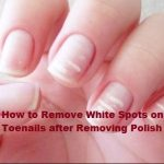 How to Remove White Spots on Toenails after Removing Polish | Crazitoo