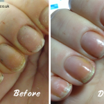 WHITE SPOTS IN NAILS – Sue's Pure Nail Oil™ Challenge   Nail Care HQ
