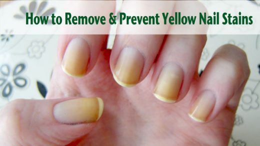 Yellow Nails – Is There a Basecoat that Prevents Staining? | Nail Care HQ