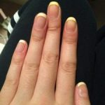 Why acrylics turn yellow - Prevent yellowing acrylic nails