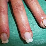 Allergic reaction to gel nails symptoms - New Expression Nails