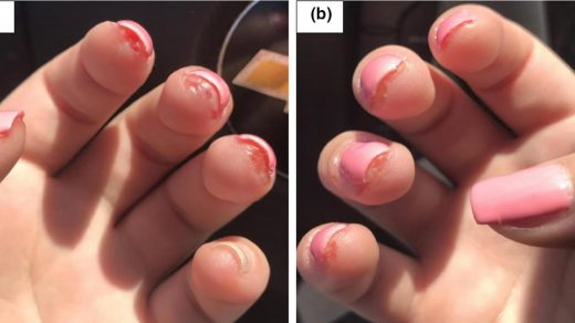 Acrylates: new sources and new allergens - Voller - 2020 - Clinical and  Experimental Dermatology - Wiley Online Library