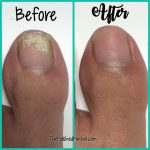 Hi everyone! How is your week going? So today I'm heading over to my toe  nails to share a personal experience …   Toe nail discoloration, Toe nails  white, Toe nails
