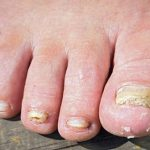 Fungal nail infections | Health Navigator NZ
