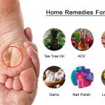 21 Home Remedies To Get Rid Of Warts Naturally