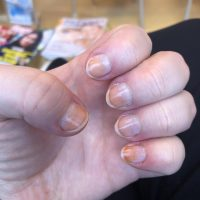 Hey there I need help. I wear nail polish every day now my nails are stained  yellow and looking very dirty even if there is no dirt. How can I remove  this?: