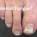 White Spots On Toenails After Removing Polish - Causes, Treatment, Home  Remedies