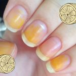 8 Home Remedies for Yellow Nails - eMediHealth
