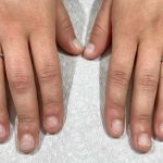 SORE NAILS AFTER ACRYLICS REMOVED: WHAT TO DO NEXT - Nails FAQs