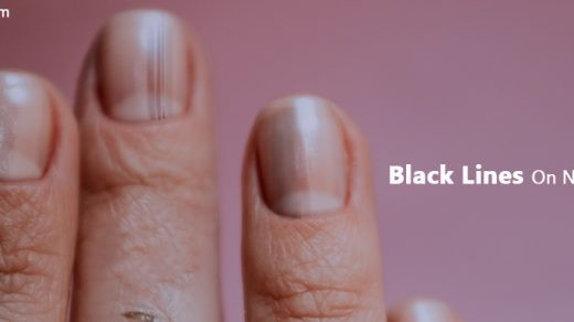 Black Lines On Nails- Causes And Tips To Get Rid