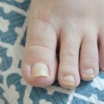 What can you do about yellow nails?   Ohio State Medical Center
